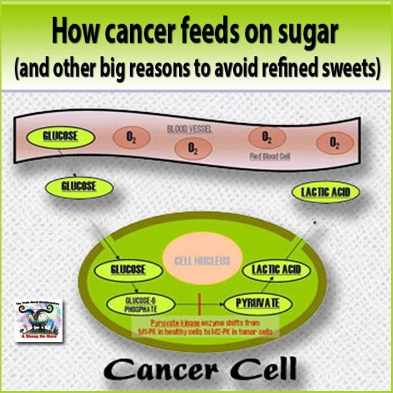 Glucose, Glutamine and Cancer - Stop Feeding It