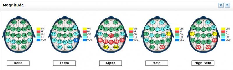 Brain_Map_-_Mild_Mixed_2_(1)