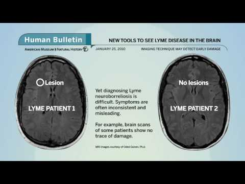 Lyme and the Limbic System 1