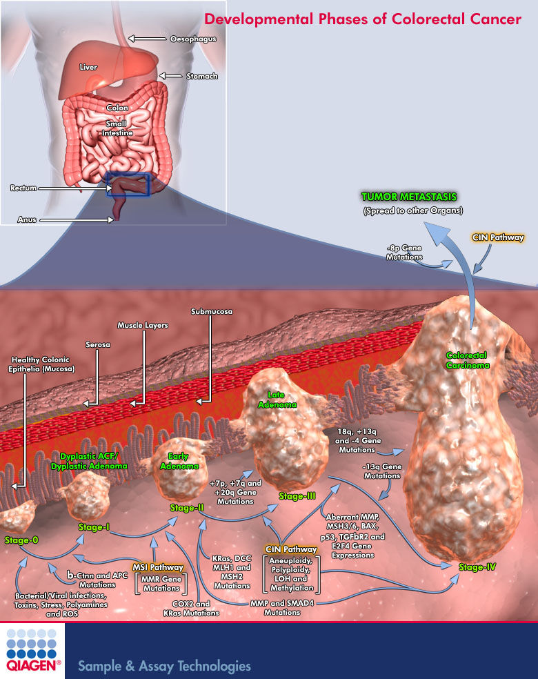 Suppressing Ras Oncogenes