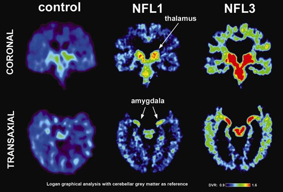 Concussions Cause Brain Atrophy