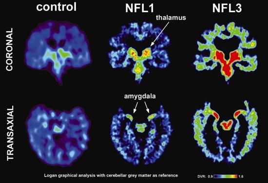Concussions Cause Brain Atrophy