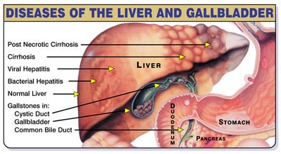 Natural Treatment For Gallbladder Infection
