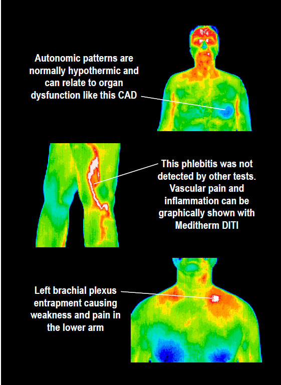 Thermography and Its Use in Cancer Care 2