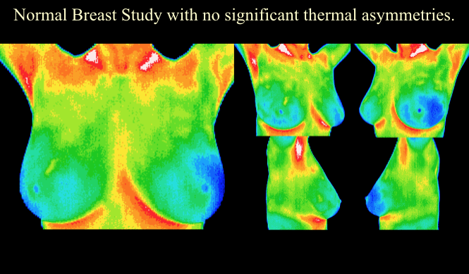 Thermography Special 2018 1