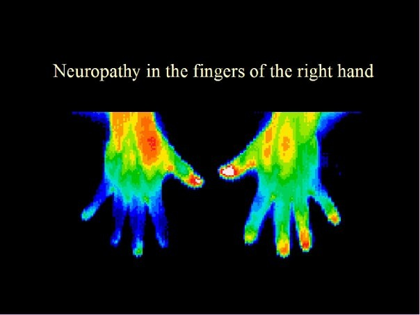 Thermography and Its Use in Cancer Care 4