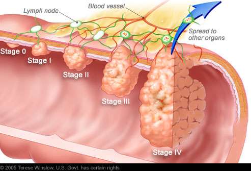 Colorectal Cancer Rates Increasing 1