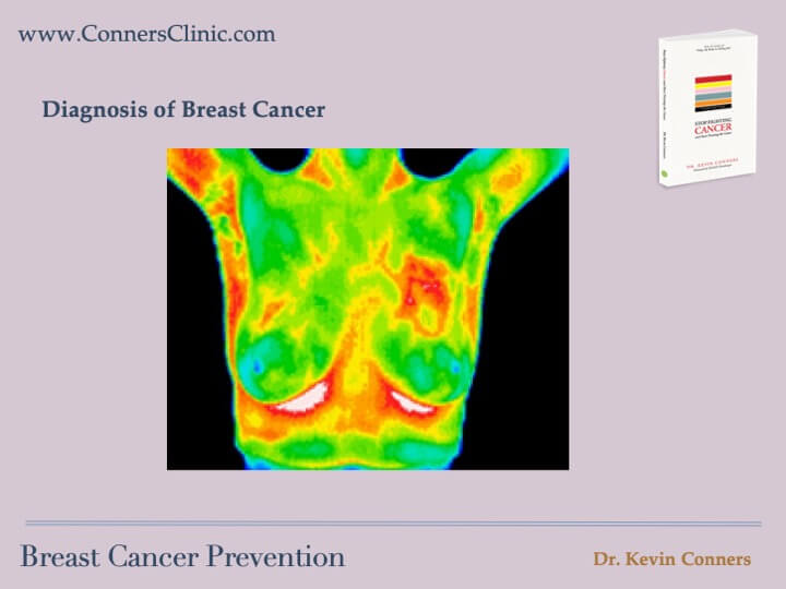 Breast Cancer Prevention 14