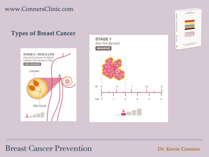 Breast Cancer Prevention 4