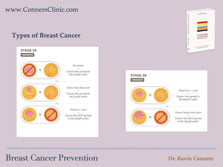 Breast Cancer Prevention 5
