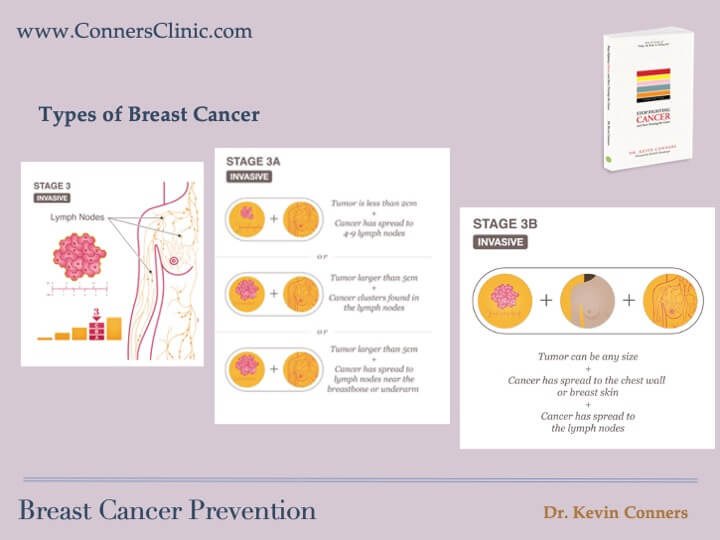 Breast Cancer Prevention 6