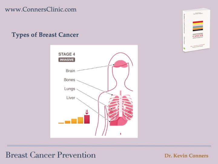 Breast Cancer Prevention 7