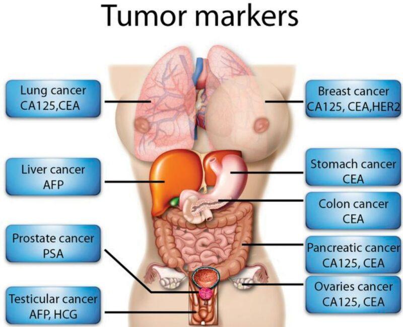 Tumor Marker Tests 2