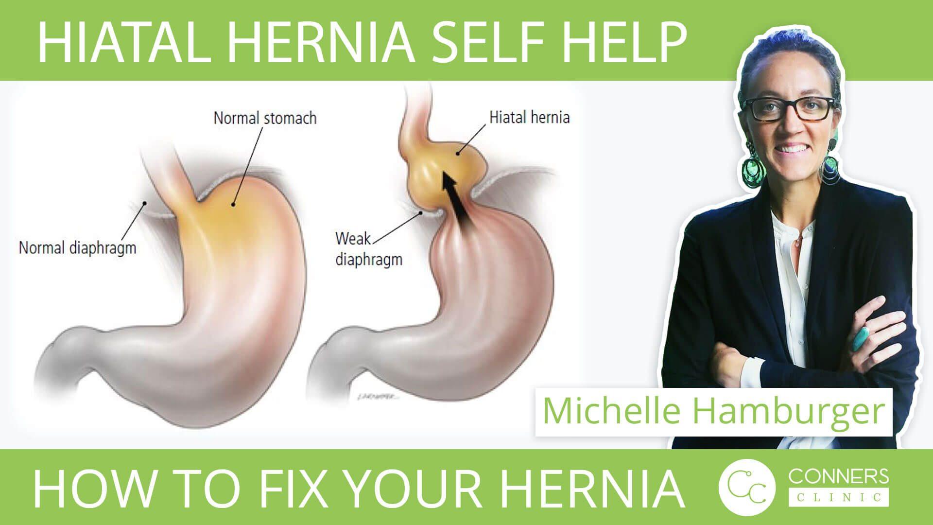 Hiatal Hernia Self-Help